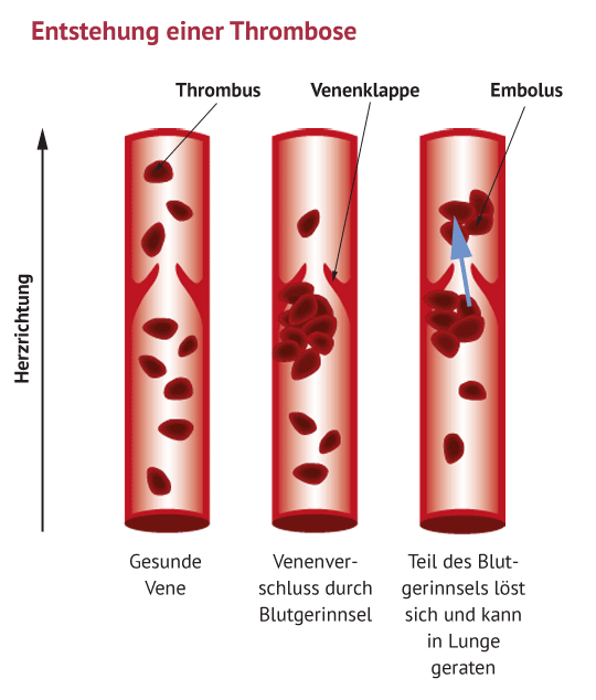 Thrombose Entstehung